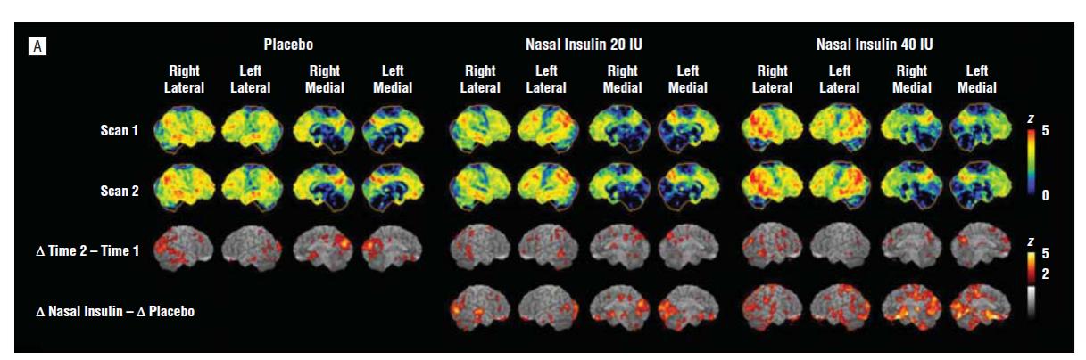 Alzheimer's Disease from a Neurological Perspective